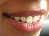 Café pode prevenir doenças nos dentes